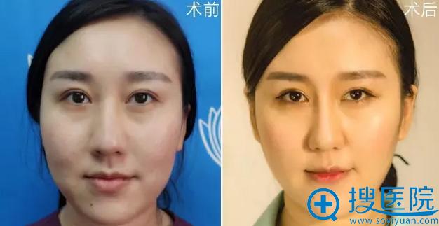 襄阳维多利亚整形医院思琳玻尿酸隆鼻正面效果对比