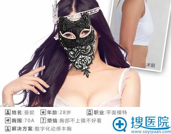 北京叶子整形假体隆胸案例图