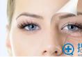 北京英煌整形医院王勋院长深度解析祛眼袋方法+祛眼袋手术案例