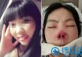 北京英煌皮肤管理美容项目与传统美容有哪些差别