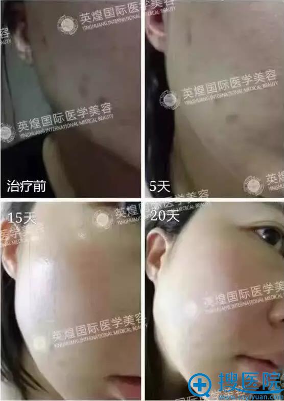 北京英煌皮肤管理中心案例