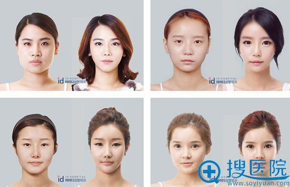 韩国ID整形Vline四方脸手术瘦脸效果