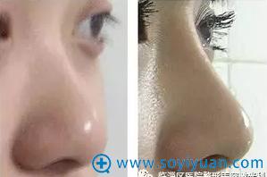 临淄区医院整形美容激光科例隆鼻手术侧面对比效果