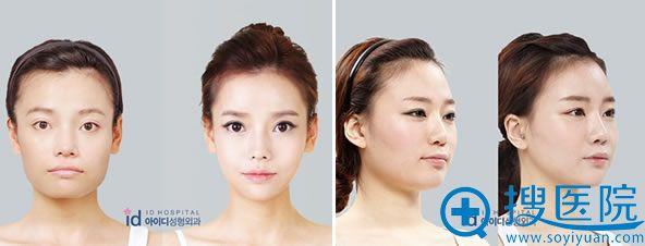 韩国ID整形医院磨骨瘦脸案例图