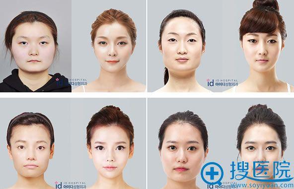 韩国ID整形下颌角手术瘦脸案例