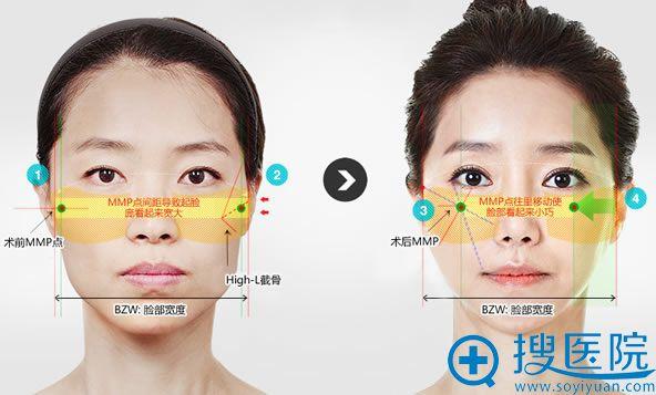 韩国ID整形High-L截骨缩小颧骨效果