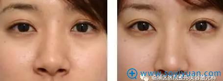 临淄区医院整形美容激光科例隆鼻手术正面对比效果