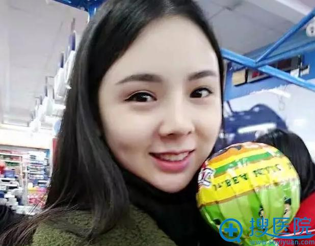 肋软骨隆鼻术后一个月的江萍