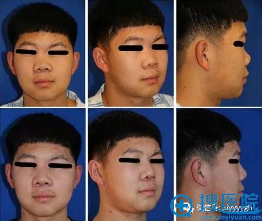 吉大一院整形外科邵英儿童肋软骨移植矫正重度鞍鼻畸形案例