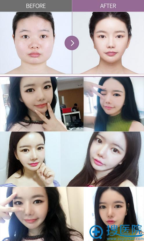 韩国巴诺巴奇整形医院下颌角手术真人案例