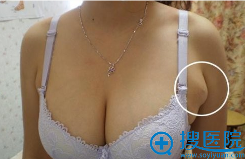 副乳位置展示