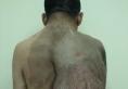 天津市第五中心医院整形外科切除神经纤维瘤真人案例