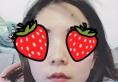 分享我在福州名韩整形医院注射瘦脸针1个月效果 终于摆脱国字脸