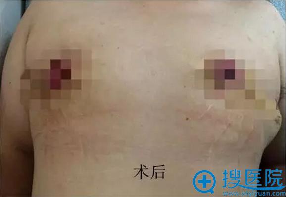男性巨乳缩小术后效果