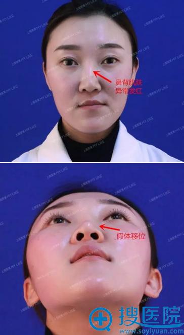 刚在上海美莱医院找李保锴做隆鼻修复手术1个月妹子的亲身经历