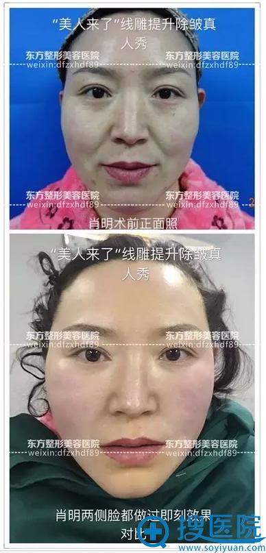 面部线雕手术前后对比照片