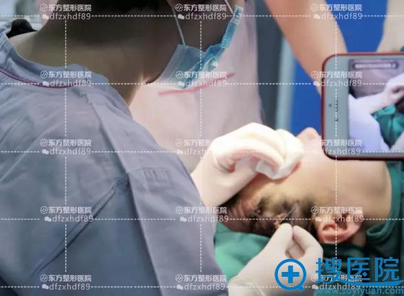东方整形医院医生开始在面部埋入线体
