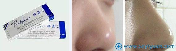 玻尿酸注射隆鼻材料及效果对比照