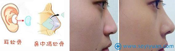 自体软骨隆鼻材料及效果对比图
