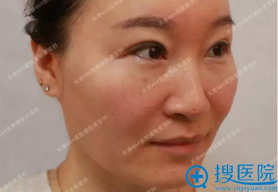 看我在天津464整形医院美容科找许进前做完热拉提效果怎么样