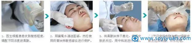 果酸换肤流程