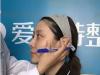 衡阳爱思特中国台湾杨定宇专访 关于面部线雕提升术Q&A