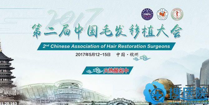 2017第二届中国毛发移植大会5月杭州召开