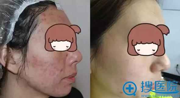 祛痘治疗前后对比照片