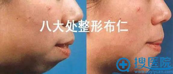 北京八大处布仁医生矫正突嘴案例图