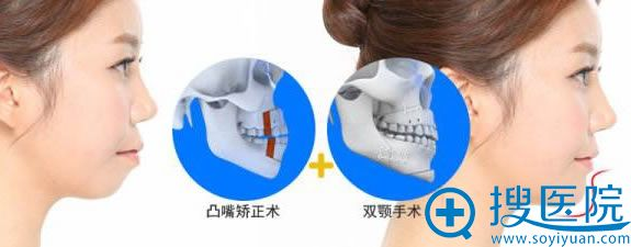 腰腹双颚手术矫正凸嘴案例图