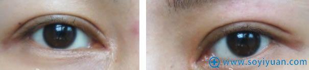 双眼皮拆线两个月的照片