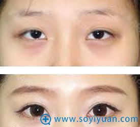 韩国BIO曹仁昌双眼皮高度过低修复案例