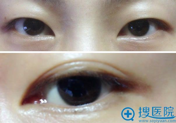 做全切双眼皮手术前的照片