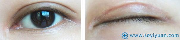 全切双眼皮拆线三个月的效果对比图
