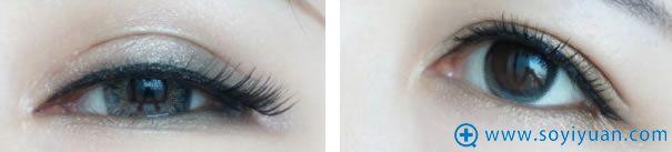 全切双眼皮术后7个月带妆照片