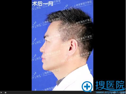 面部线雕一个月侧面恢复图片