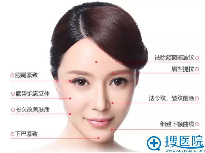 PPDO线雕蛋白线提拉可以改善的面部问题
