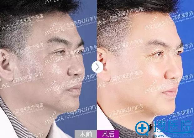 美莱微整形主任申涛PPDO线雕蛋白线提拉手术前后对比照片