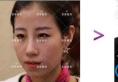 【真人案例】在北京京韩整形医院找乔爱军做脂肪填充+面雕6个月