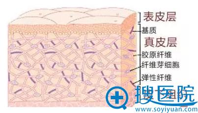 嗨体细胞赋活针直接作用于真皮层