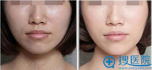 上海艺星整形注射玻尿酸前后对比照片