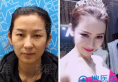 面诊了济南瑞丽和伊美尔后找王清峰做了双眼皮隆胸和脂肪填充