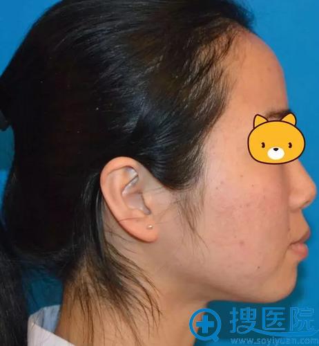 小美半个月后的面部除皱效果