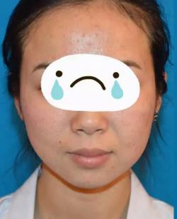 潍坊医学院整形外科张海荣主任祛痘真人案例 有痘痘的都来看