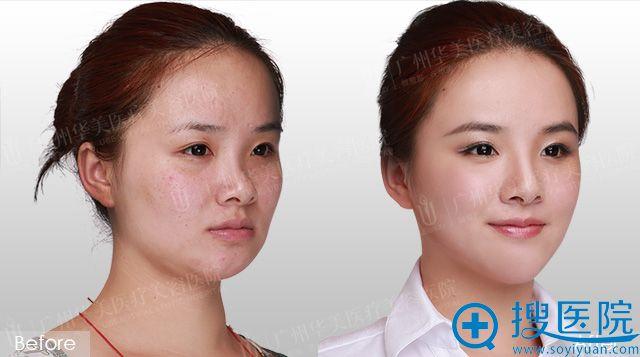 广州华美赵晶晶注射隆鼻和下巴案例