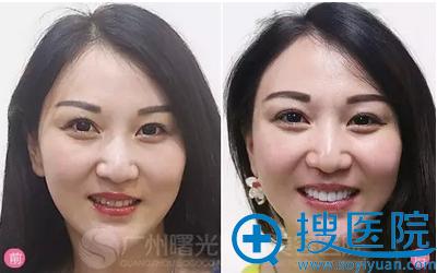 广州记者3D全瓷牙贴面美白牙齿前后对比