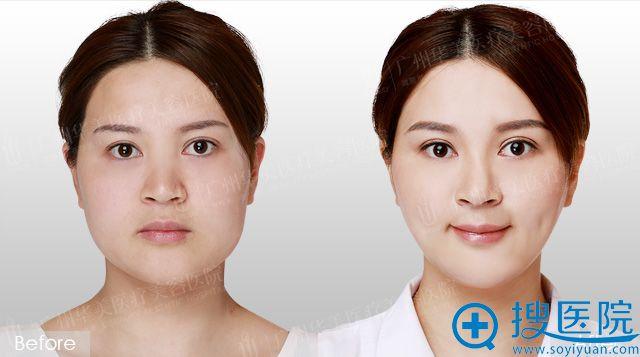 广州华美赵晶晶注射瘦脸针案例图