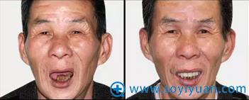 口腔医生牟家云种植牙前后对比