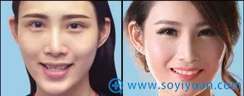 口腔医生王浩牙齿矫正案例