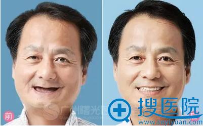 退休工人完美种植牙前后对比